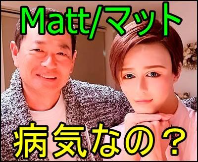 Matt(マット)は整形依存症?どんな彼女と付き合ってる?正体も暴露!e