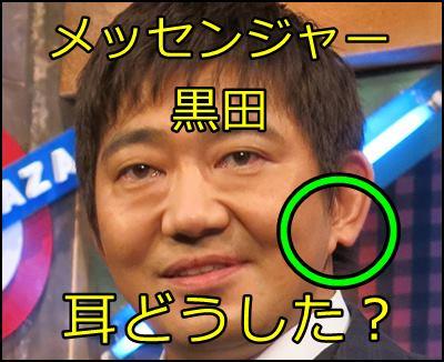 メッセンジャー黒田の耳はなぜ欠けている?衝撃の理由が明らかに!