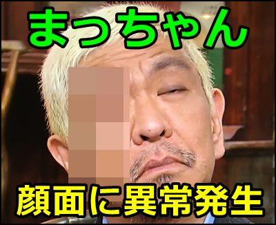 まっちゃん(松本人志)、右頬のシミ画像がひどい!探偵ナイトスクープで…?